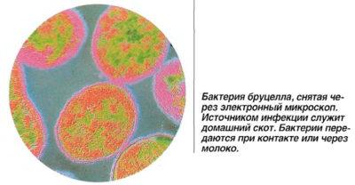 Бруцелла под микроскопом